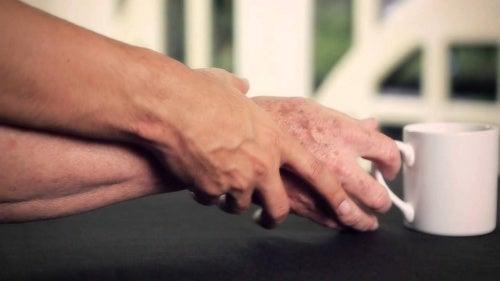 Relación entre el párkinson y las enfermedades autoinmunitarias