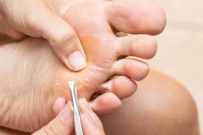 Lesiones y enfermedades de los dedos de los pies