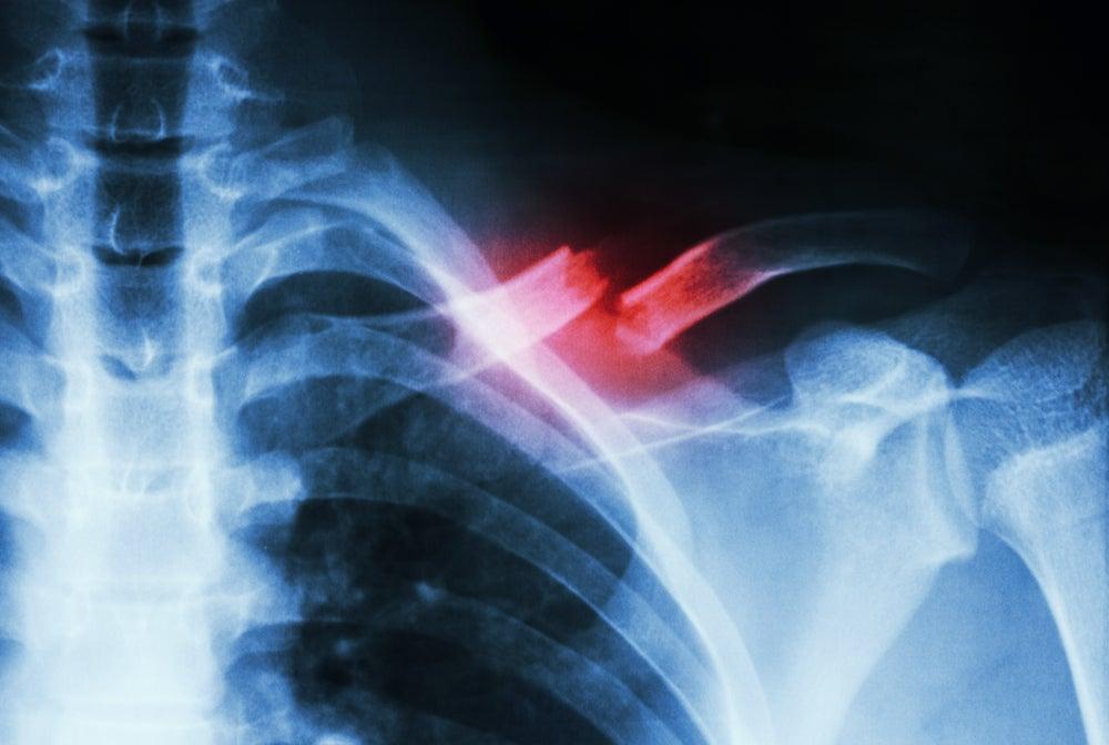¿Se puede acelerar la curación de una fractura de hueso?