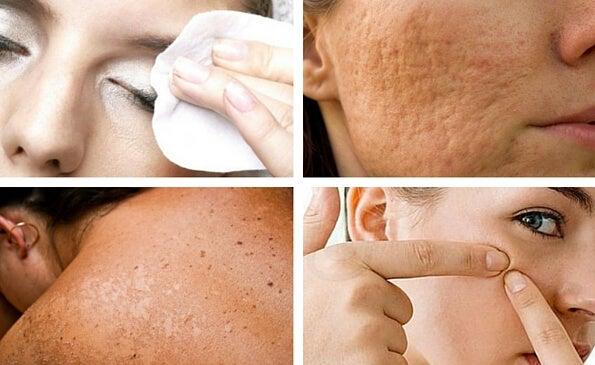 7 hábitos que perjudican la salud de tu piel y que puedes evitar