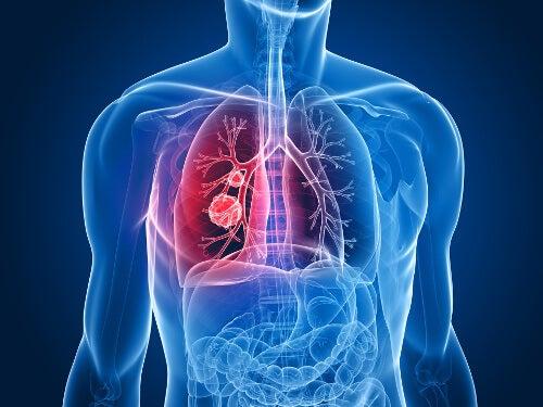 Los 9 signos de cáncer de pulmón que deberías conocer