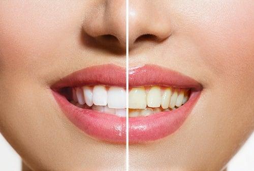 Mujer mostrando dientes sanos y blancos