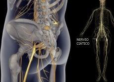 Dolor en el nervio ciatico