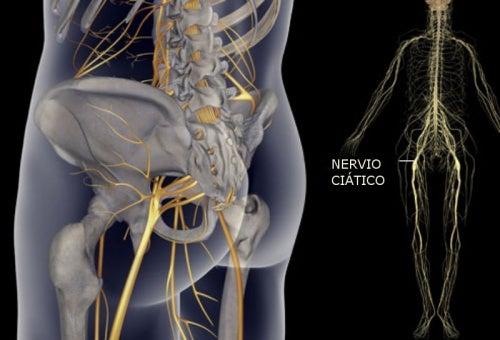 La ciática en rodilla e de dolor la hinchazón