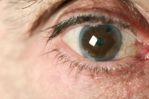 Reducir la presión para evitar el glaucoma