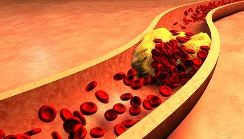 Una bacteria podría relacionar las enfermedades cardiovasculares con las de encías