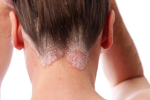 psoriasis cuero cabelludo