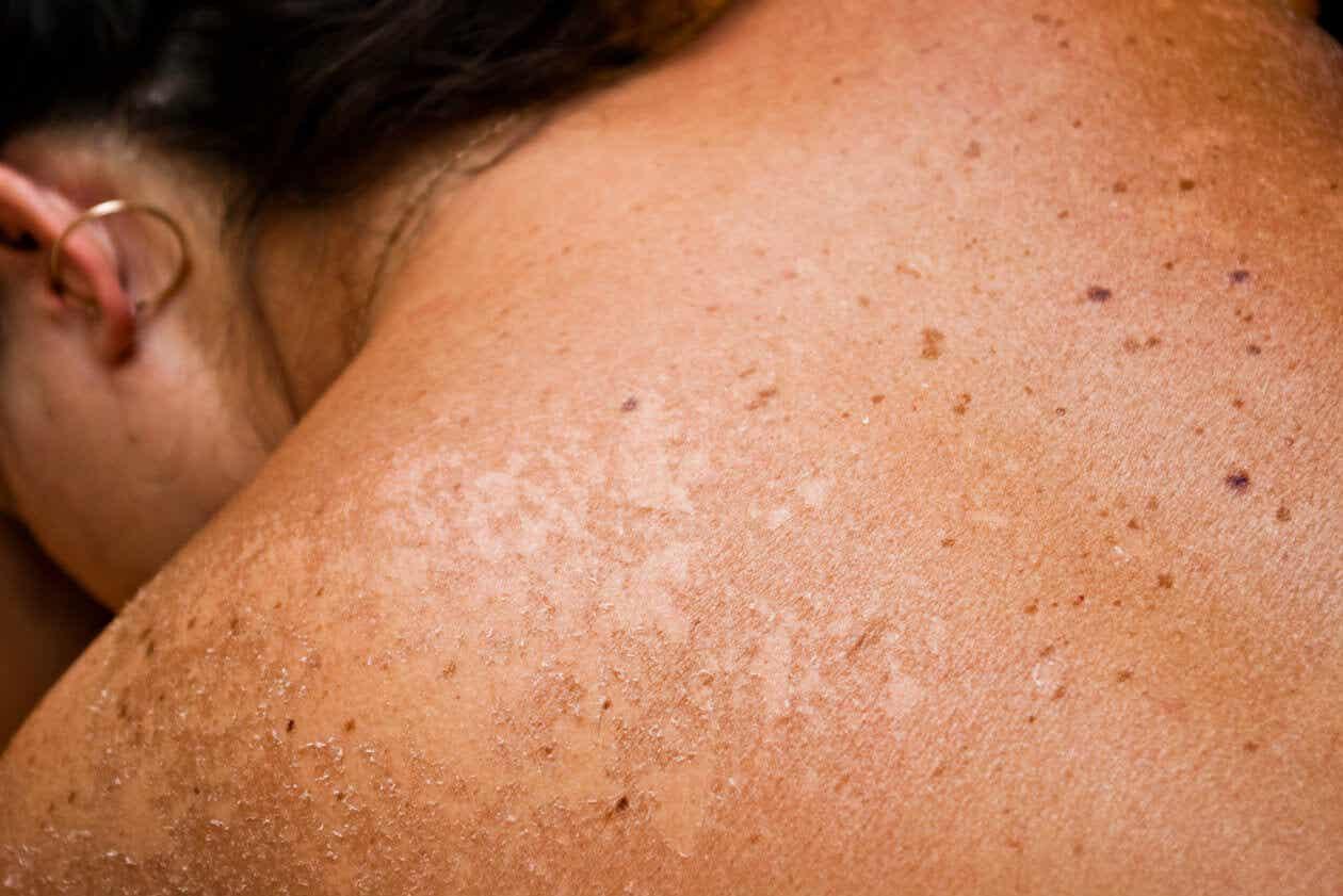 6 buenos remedios naturales para aliviar las quemaduras solares