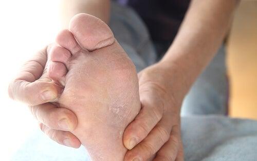 Remedios para tratar naturalmente el pie de atleta