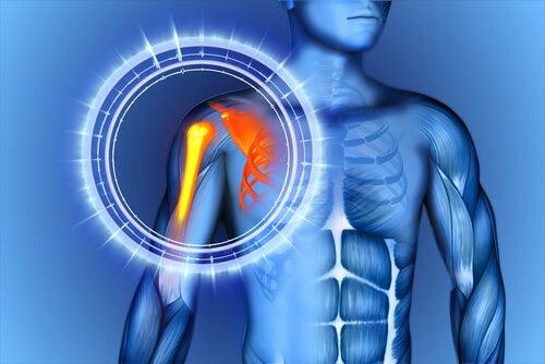 Cómo reducir el dolor en los huesos naturalmente