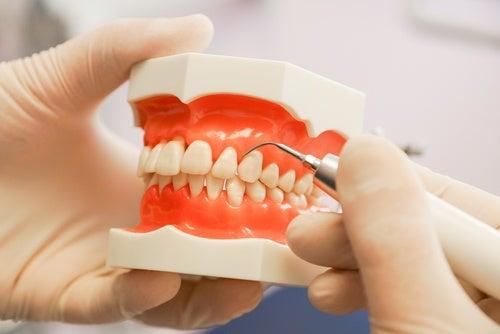 enfermedades-periodontales