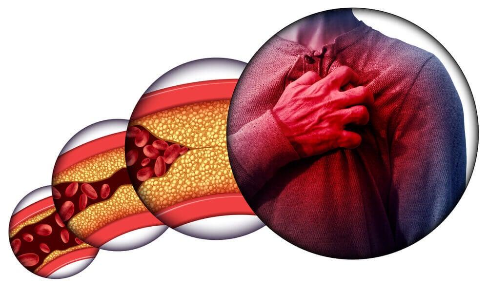Riesgos del colesterol alto.