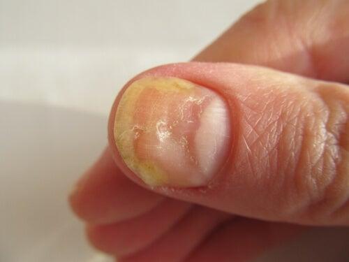 hongos en las unas delas manos tratamiento casero