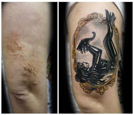 tatuajes mujer cicatrices