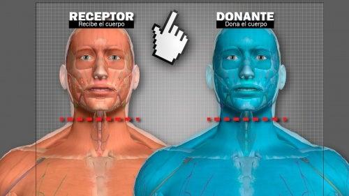 Trasplante de cabeza: un hombre ruso se ofrece voluntario para ser el primero en la historia