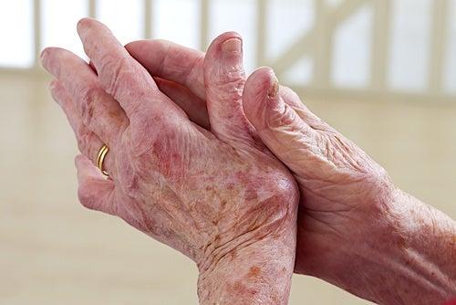 árnica para aliviar los dolores musculares
