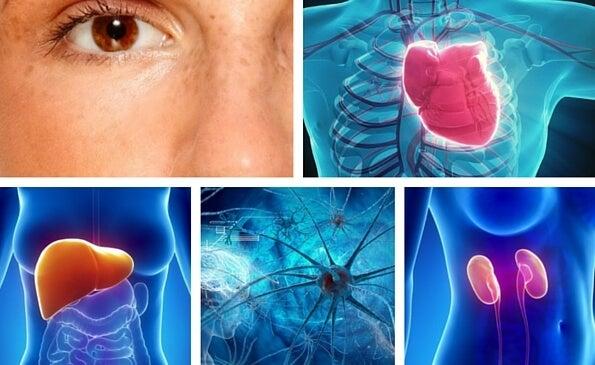 10 partes del cuerpo que se ven afectadas por el estrés