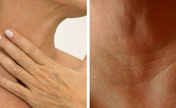 4 tratamientos naturales para prevenir la aparición de arrugas en el cuello y las manos