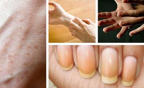 9 interesantes cosas que las manos reflejan sobre tu salud