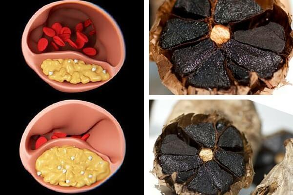 Ajo negro: un remedio eficaz para tratar el colesterol