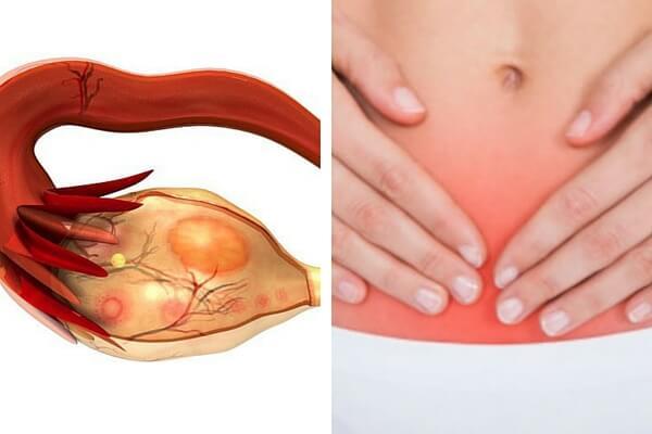 Cáncer de ovario: 7 señales que alertan del asesino silencioso