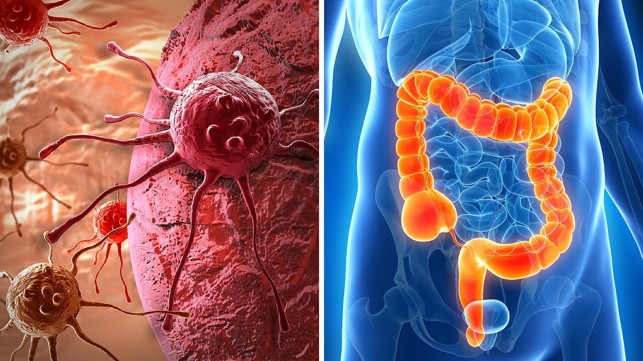 Cómo detectar los posibles síntomas de cáncer de colon