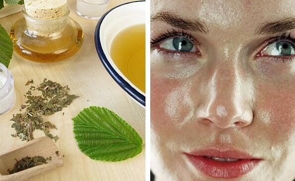 Cómo preparar en casa un astringente herbal para el cutis grasoso