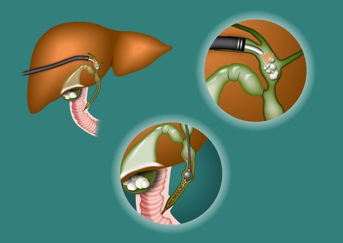 Cómo saber si la vesícula biliar necesita limpiarse