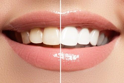 Un maquillaje correcto nos ayuda a lucir una sonrisa envidiable.