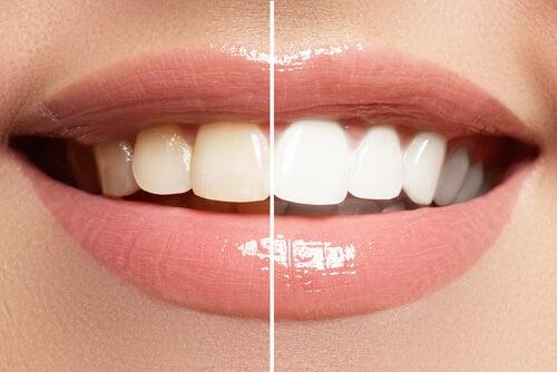 9 alimentos que pueden dañar el esmalte de tus dientes