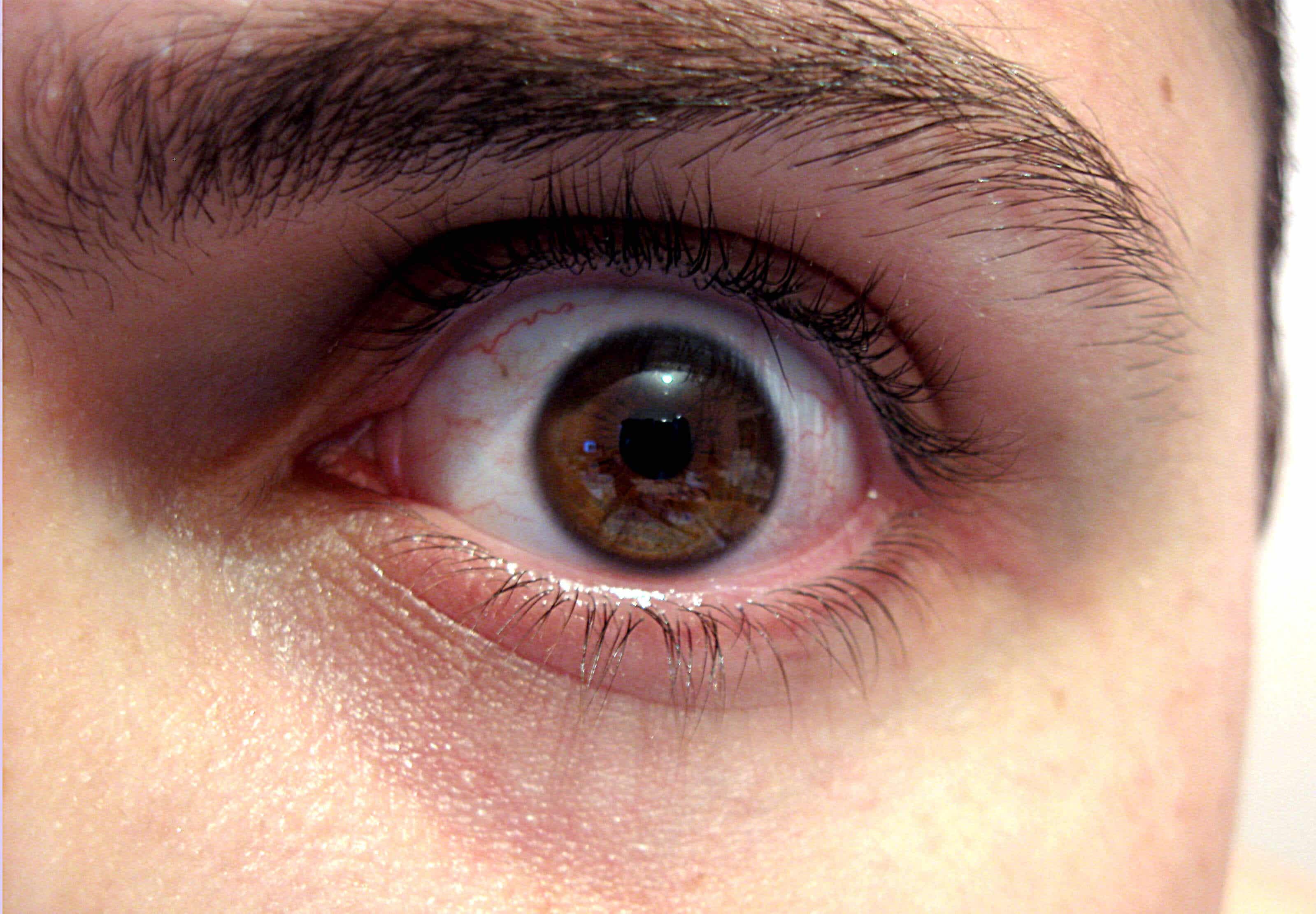 ¿Cómo afecta a tu cuerpo y rostro no dormir bien?