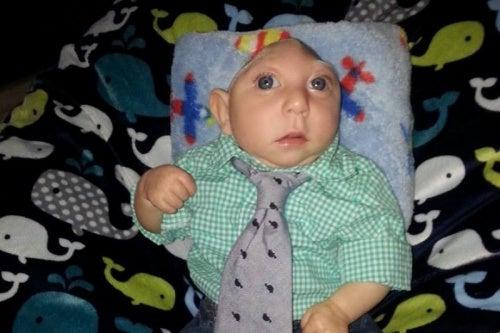 Jaxon, el bebé con la malformación