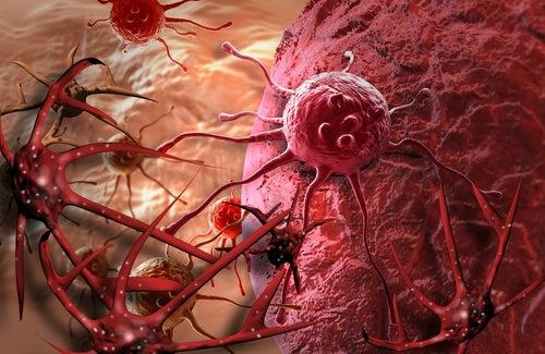 Los riesgos potenciales de la mamografía