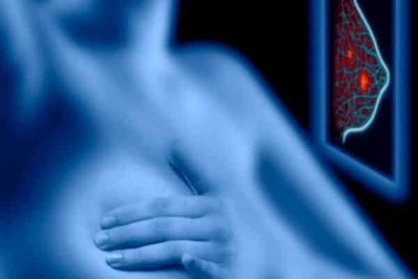 Mamografía, beneficios y riesgos