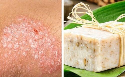 Receta de jabón casero para pieles con eccema