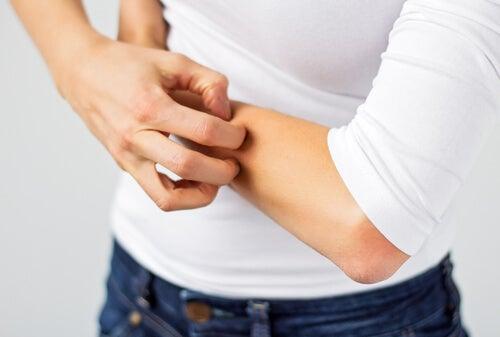 Pessoa que não consegue aliviar a alergia da pele