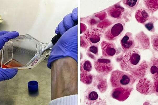 Un grupo de científicos encuentra un sistema para que las células de leucemia se destruyan entre sí