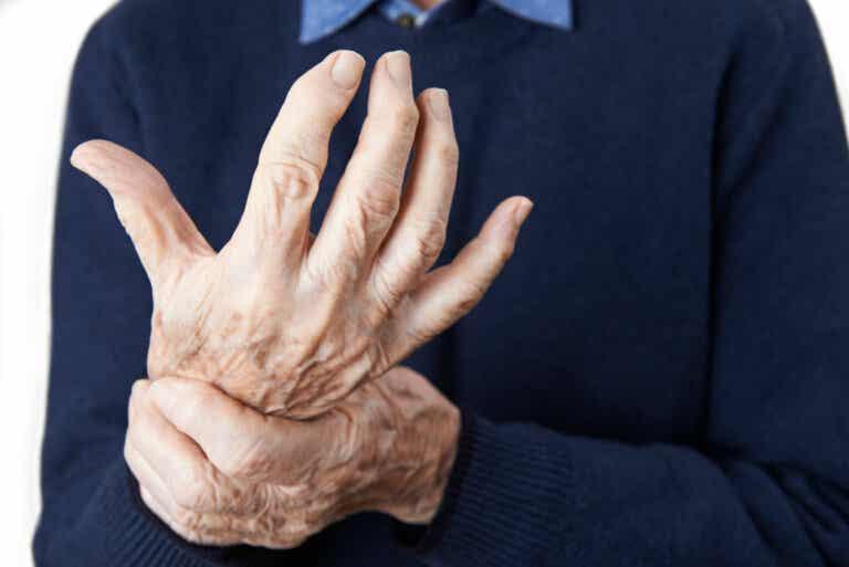 7 mitos sobre la alimentación y la artritis