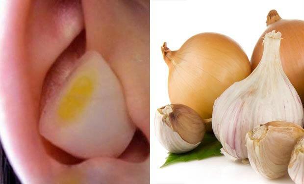 ¿Por qué es beneficioso poner un trozo de ajo o de cebolla en el oído?