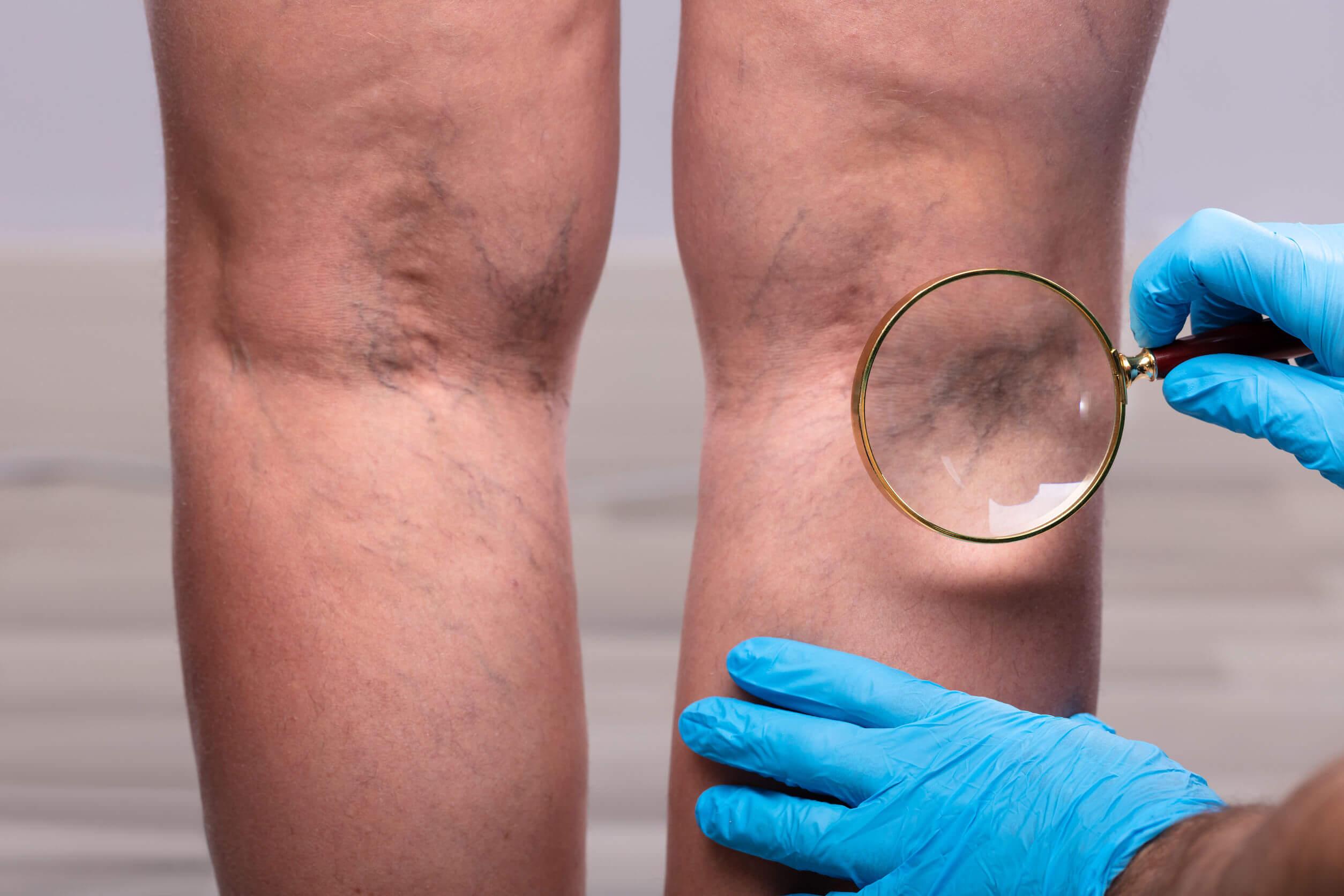 Las piernas hinchadas son comunes.