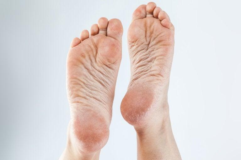 3 cremas naturales para eliminar los callos de los pies