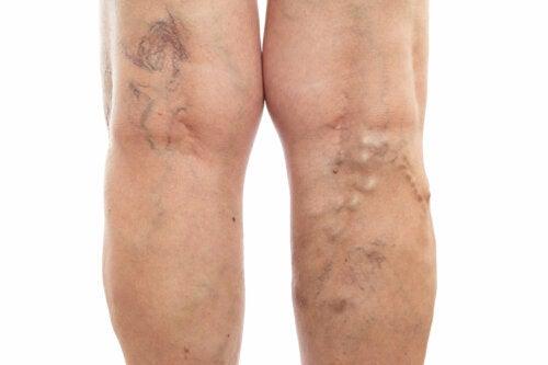 Las piernas hinchadas podrían ser el indicio de un problema de salud más grave