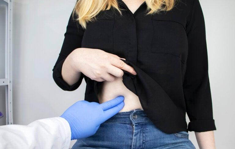Colitis ulcerosa: causas, síntomas y tratamiento