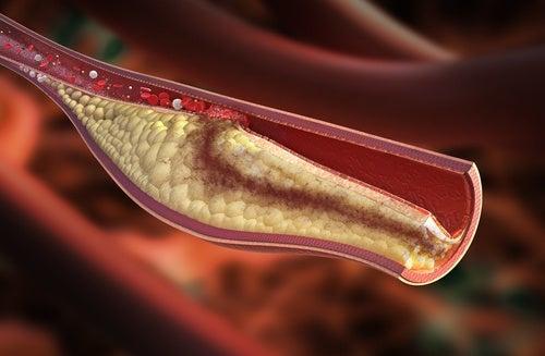¿Cuáles son los síntomas que advierten el colesterol alto?