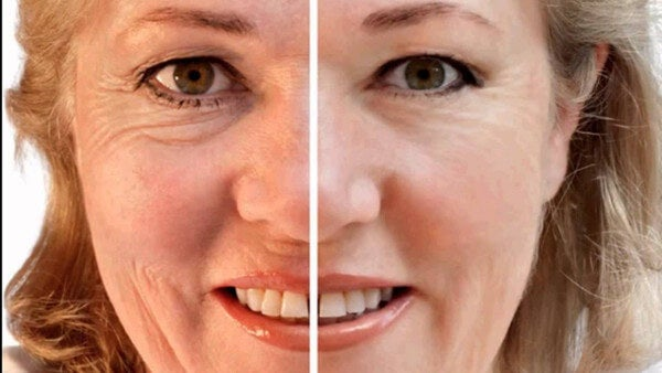 3 natural masks to attenuate deep wrinkles
