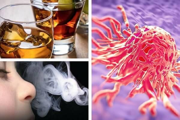 5 cosas que podrían causar alguno de los tipos de cánceres