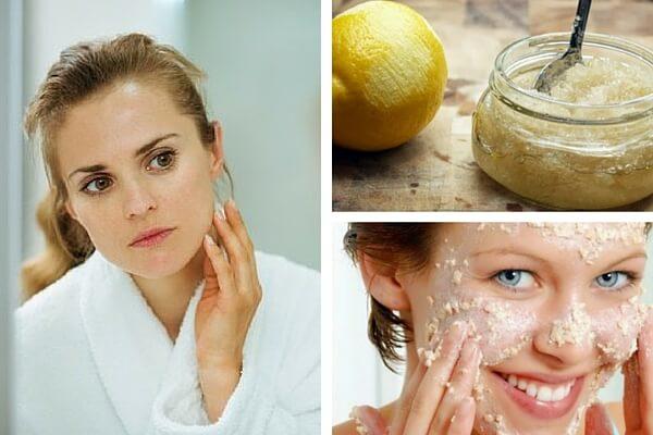 6 recomendaciones que te ayudarán a disminuir las manchas faciales