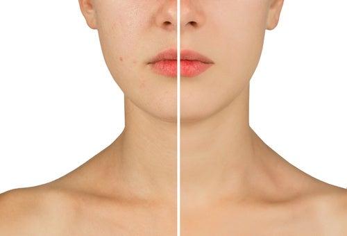 Pele-com-acne