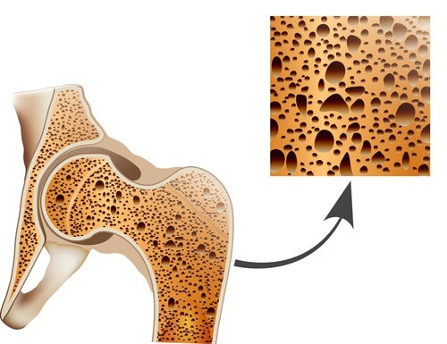 Cuida los huesos y previene la osteoporosis