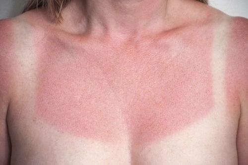 Mujer con quemadura solar